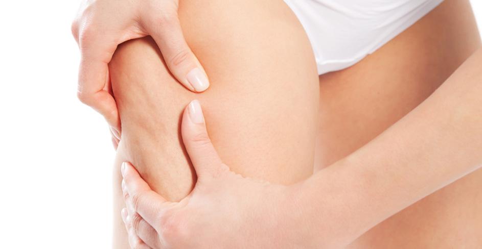 Anticeliulitinis masažas
